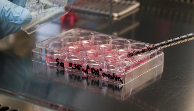 Induced Pluripotent Stem Cells: New Tool for Studying Insulin Resistance