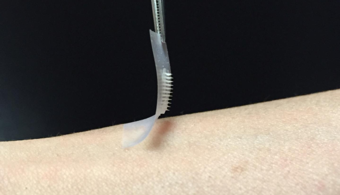 "This is the ""smart insulin patch,"" developed by researchers in the joint UNC/NC State Biomedical Engineering Department.*"