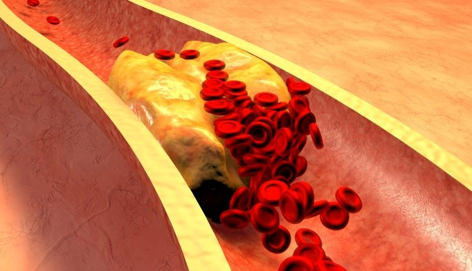 No link observed between testosterone use and atherosclerosis progression.