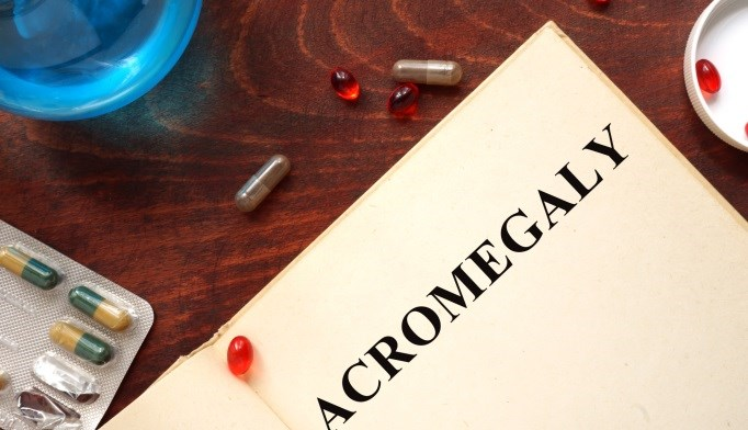 Acromegaly Diagnosis Delayed in Elderly Woman
