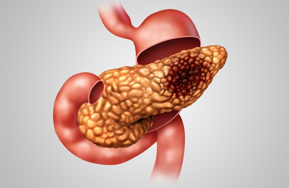 Pancreatic cancer causes nearly 250,000 deaths every year, and some epidemiological studies have suggested that hepatitis B virus may be a potential risk factor.
