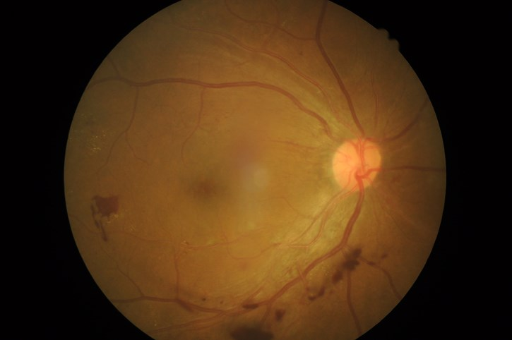 Black and Latino youth were less likely to undergo an eye examination for diabetic retinopathy within 6 years of their diagnosis.