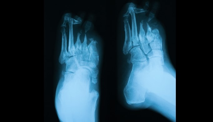 Antibiotic Resistant Bacteria Common in Diabetic Foot Ulcers