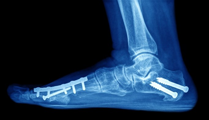 Kaplan-Meier analysis showed that the median time to the first fracture in patients was 2.88 years and 7.32 years for the third fracture.