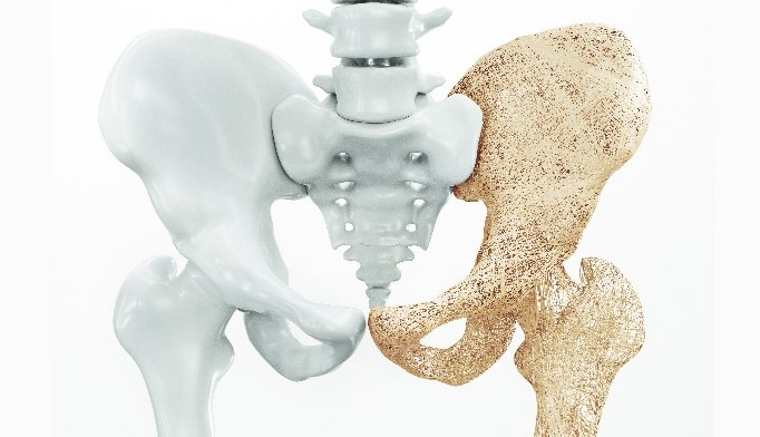 The DPP-4 inhibitor alogliptin may be associated with a lower risk for bone fracture compared with linagliptin and saxagliptin.