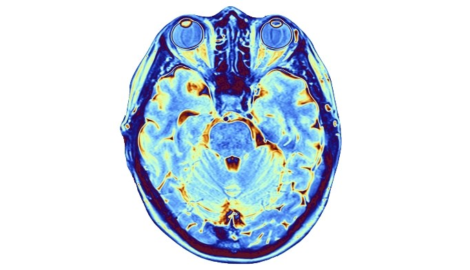 Posttraumatic Stress Disorder Associated With Reduced Brain Volume