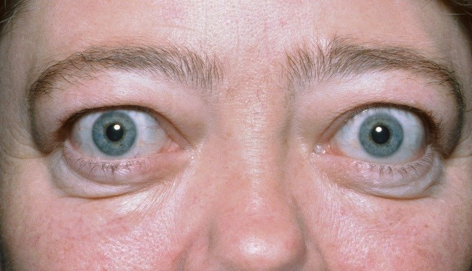 Teprotumumab reduced proptosis in patients with active ophthalmopathy. <i>Image Credit: Clinical Photography, Central Manchester University Hospitals NHS Foundation Trust, UK/Science Source</i>