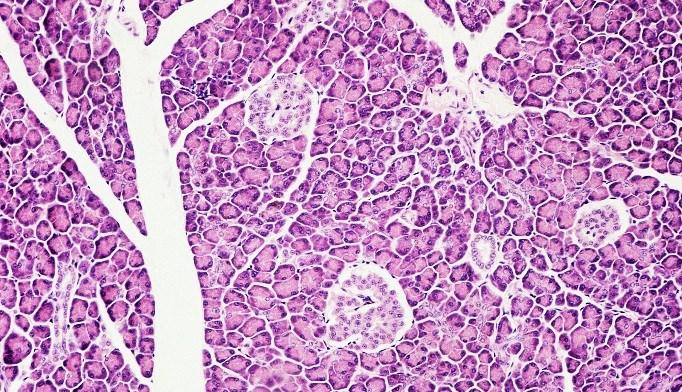Metformin May Preserve Beta-Cell Function in T2DM