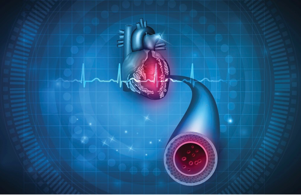Excess Cardiac Risk Varies With Age of Onset of Type 1 Diabetes