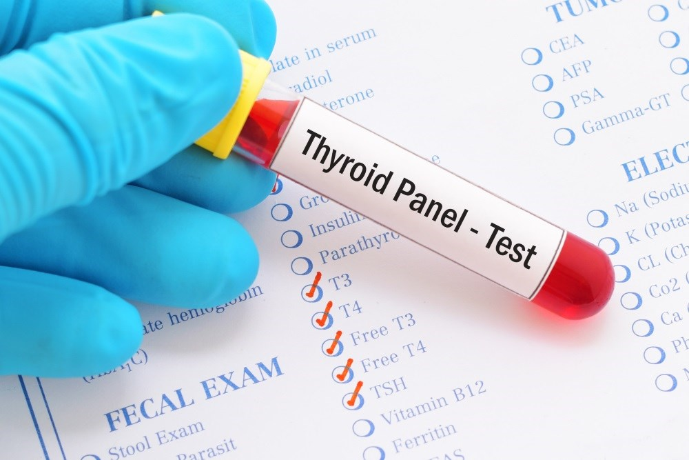 Thyroid Hormone Levels, Body Composition, Insulin Resistance in Euthyroid Patients