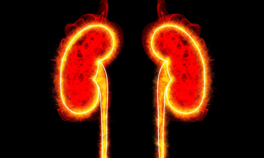 High Uric Acid Ups Renal Failure Risk in Some CKD Patients