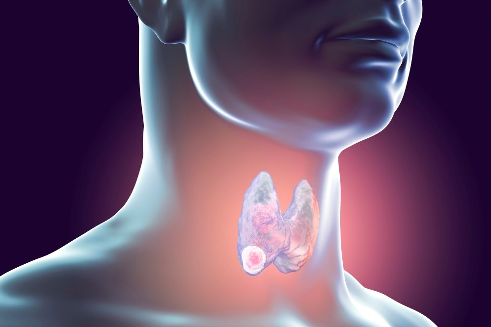 Overtreatment of Thyroid Cancers Seems Common