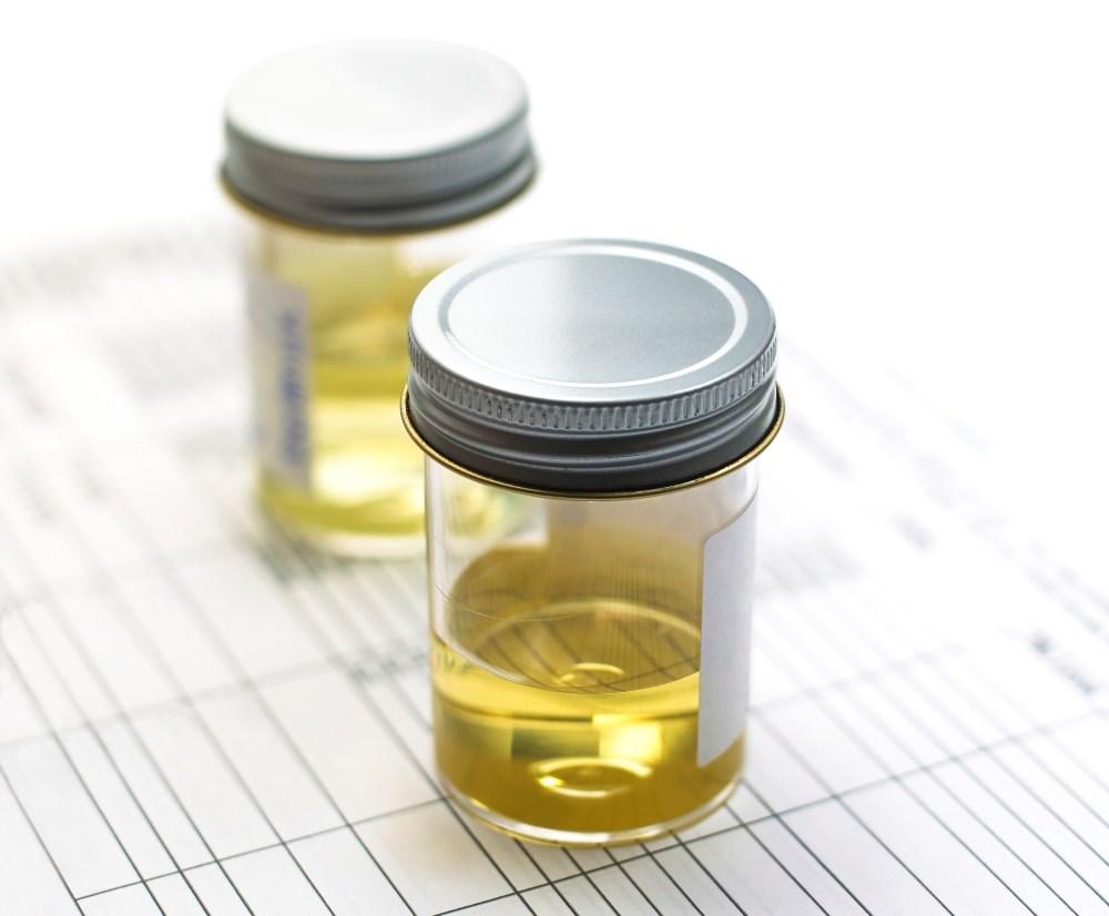 Ibuprofen Inferior to Pivmecillinam for Uncomplicated UTI in Women