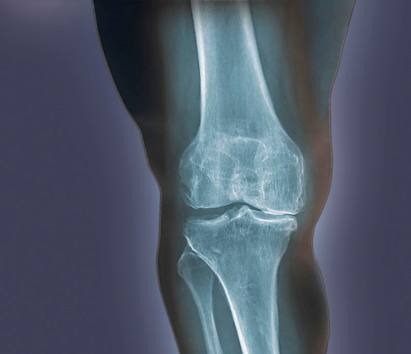 Higher Prevalence of Sarcopenic Obesity in Osteoarthritis Than Rheumatoid Arthritis