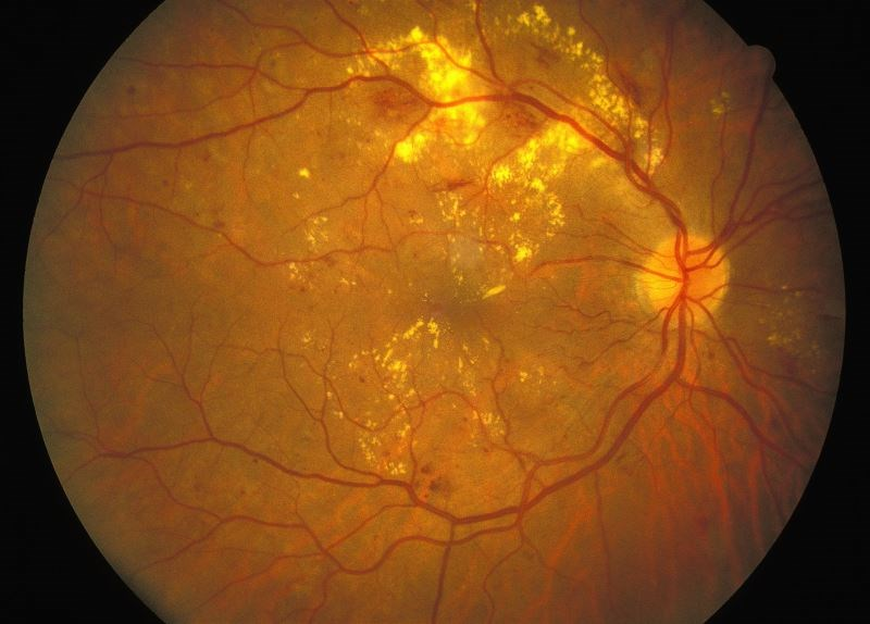 Patients With Diabetic Retinopathy Experience Barriers to Diabetes Self-Management