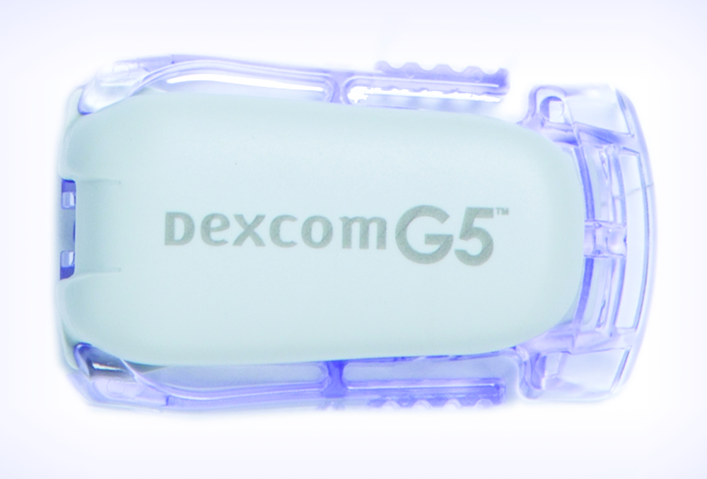 A simplified approach to interpreting data from continuous glucose monitors may help approve glycemic control in pediatric patients with diabetes. <i>Photo courtesy of Dexcom, Inc.</i>