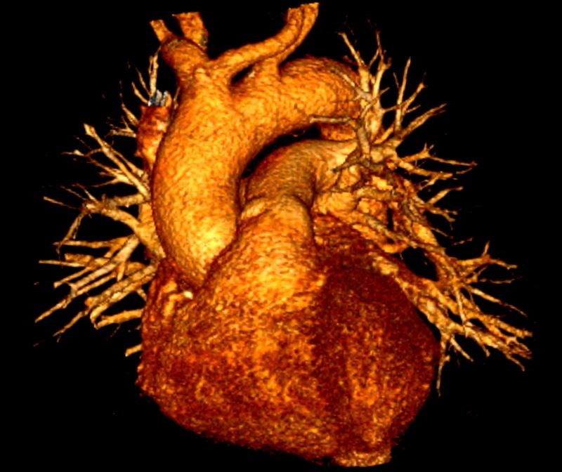 Severe Hypoglycemia Linked to High Risk for CV Events in Adults With T2D