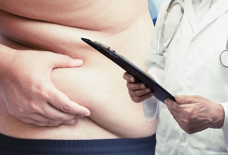 Rate of Major Complications Low After Bariatric Surgery