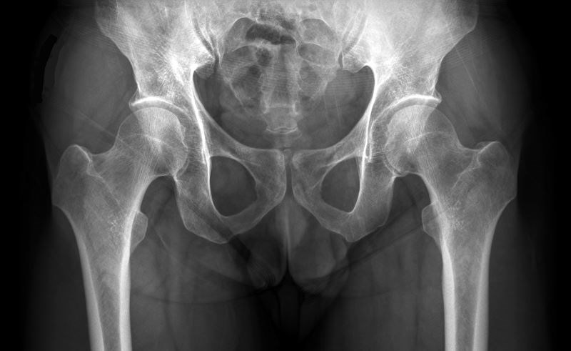 Romosozumab Followed by Alendronate Decreases Fracture Risk in Women With Osteoporosis