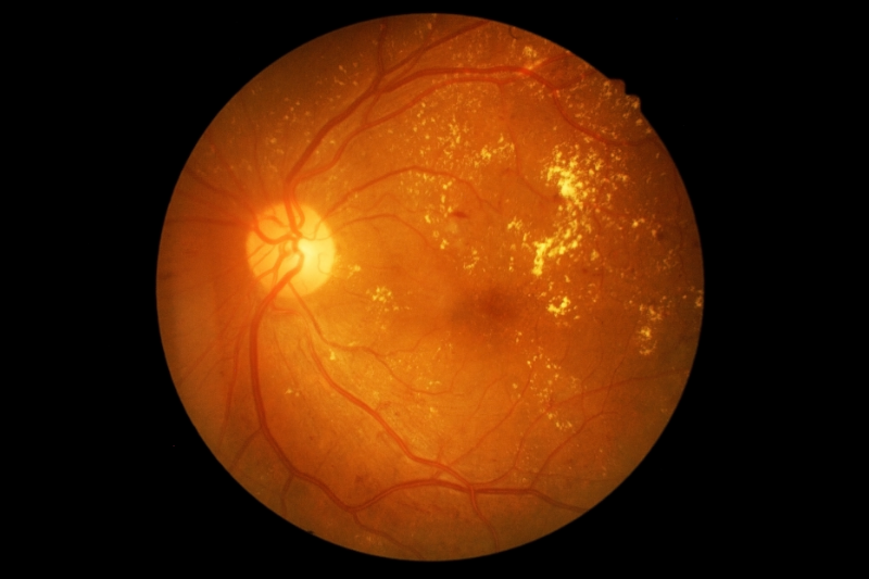 The AUC of the deep learning system for referable diabetic retinopathy was 0.936, and sensitivity and specificity were 90.5% and 91.6%, respectively.