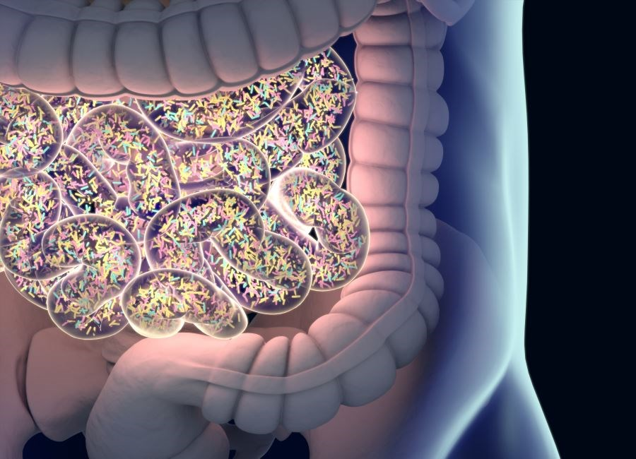 Hyperandrogenism May Affect Gut Microbiome Changes in PCOS