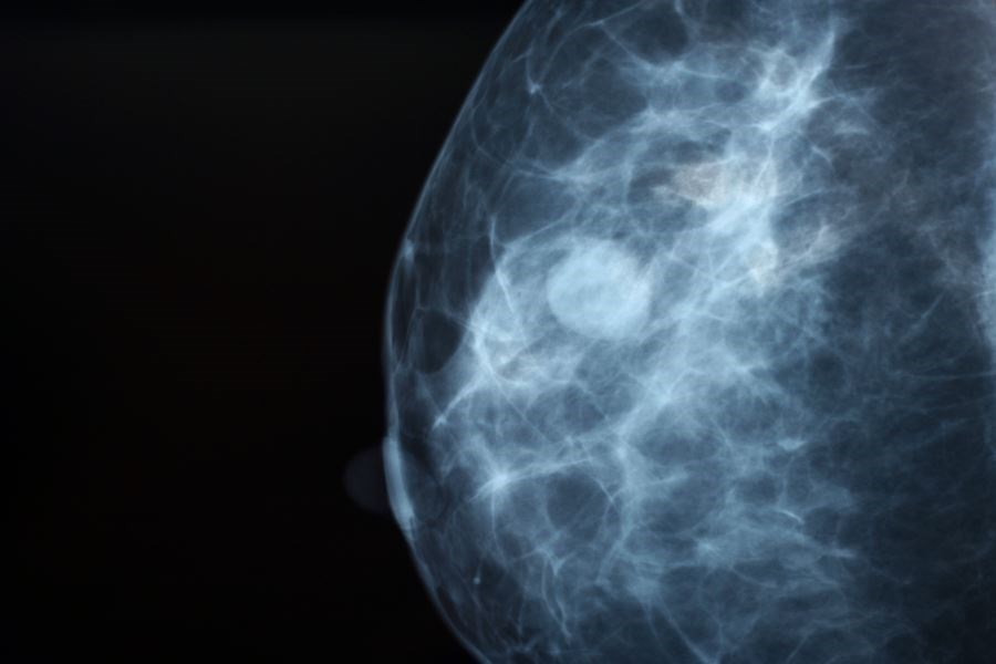 Women With Diabetes Have Higher Breast Cancer-Specific Mortality