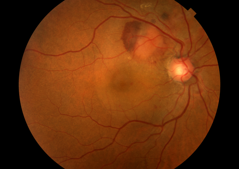 Diabetic Retinopathy May Be Independent Risk Factor for Parkinson Disease