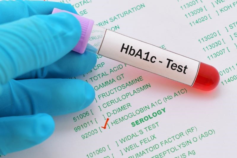 Individuals with advanced age and lower life expectancy should be treated to reduce symptoms rather than strictly focusing on HbA1c level target.