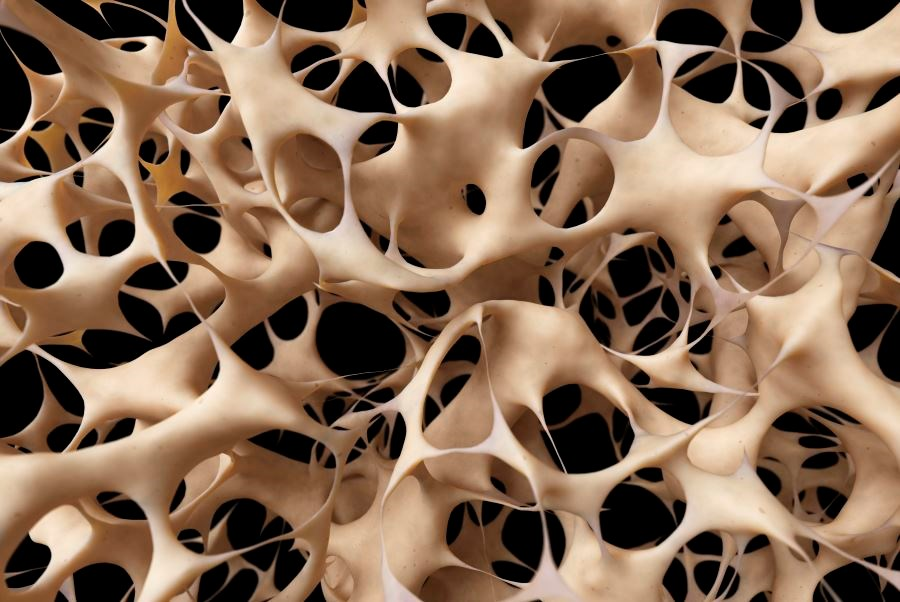 Greater Bone Formation With Teriparatide vs Zoledronic Acid in Osteoporosis