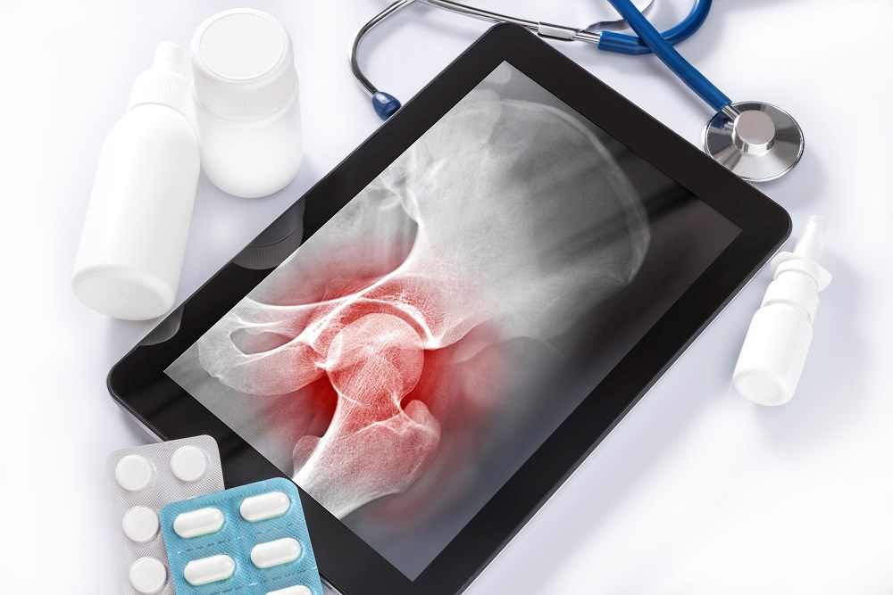 Patients with type 2 diabetes had more prevalent fractures and more prevalent major osteoporotic fracture compared with those without diabetes.