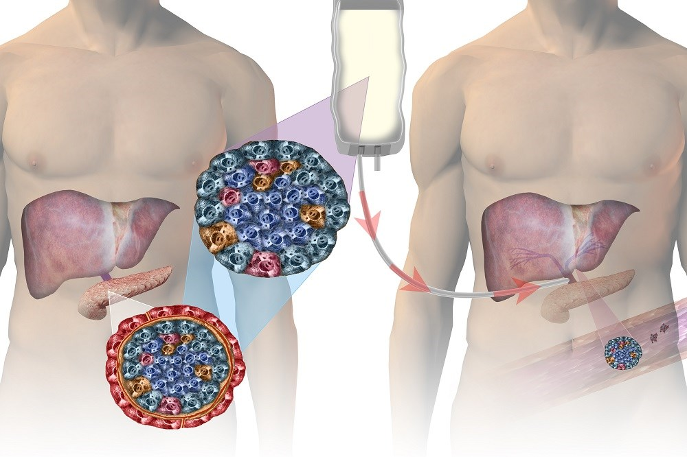 Consensus Report Defines Treatment Success in β-Cell Replacement Therapy