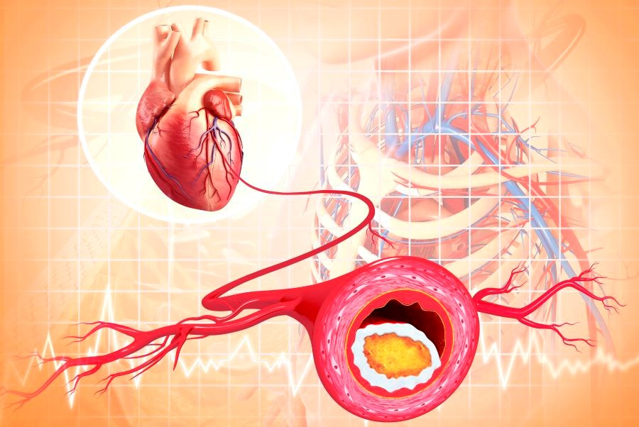 Increased Risk for Mortality in People With Diabetes, CHD Taking Beta-Blockers