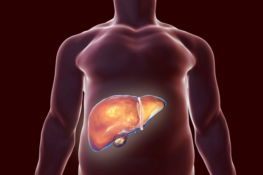Liver Disease-Related Deaths Up Sharply From 1999 to 2016