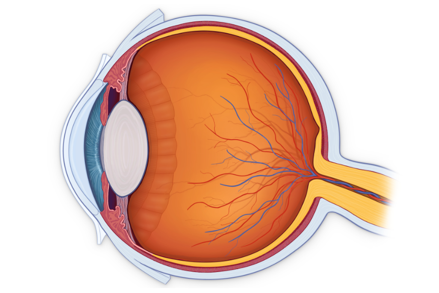 Choroidal Thickness Changes in Patients With Untreated Diabetes