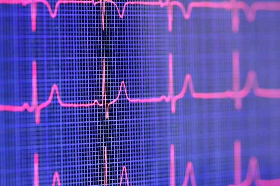Screening for cardiac autonomic neuropathy is recommended at the time of diagnosis of type 2 diabetes, which may be detected by measuring heart rate variability.