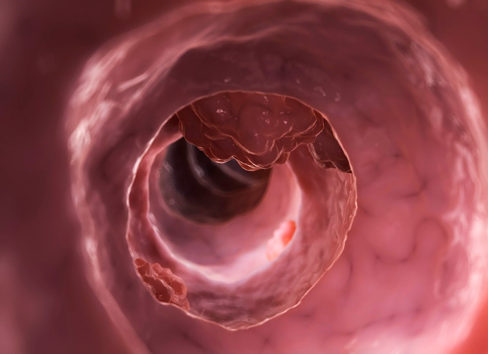Metformin May Decrease Colorectal Cancer Risk Among Males With Diabetes