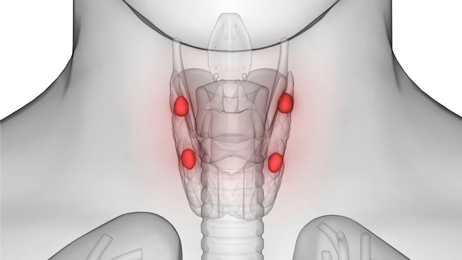 Cinacalcet May Delay Surgery for Secondary Hyperparathyroidism
