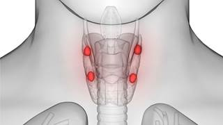 Parathyroid gland volume more than halved in patients treated with cinacalcet for 8 years.