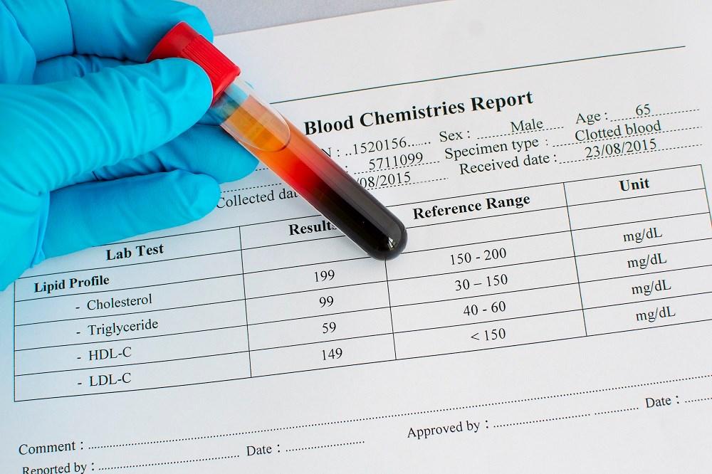 Alirocumab Lowers LDL-C in Diabetes and Cardiovascular Disease