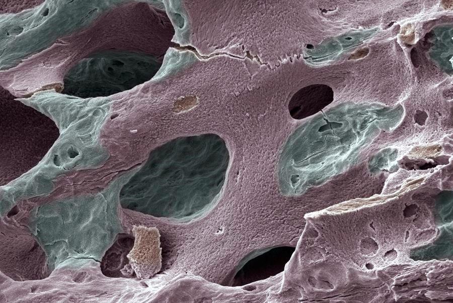 Romosozumab Followed by Denosumab Effective for BMD Increase in Postmenopausal Women