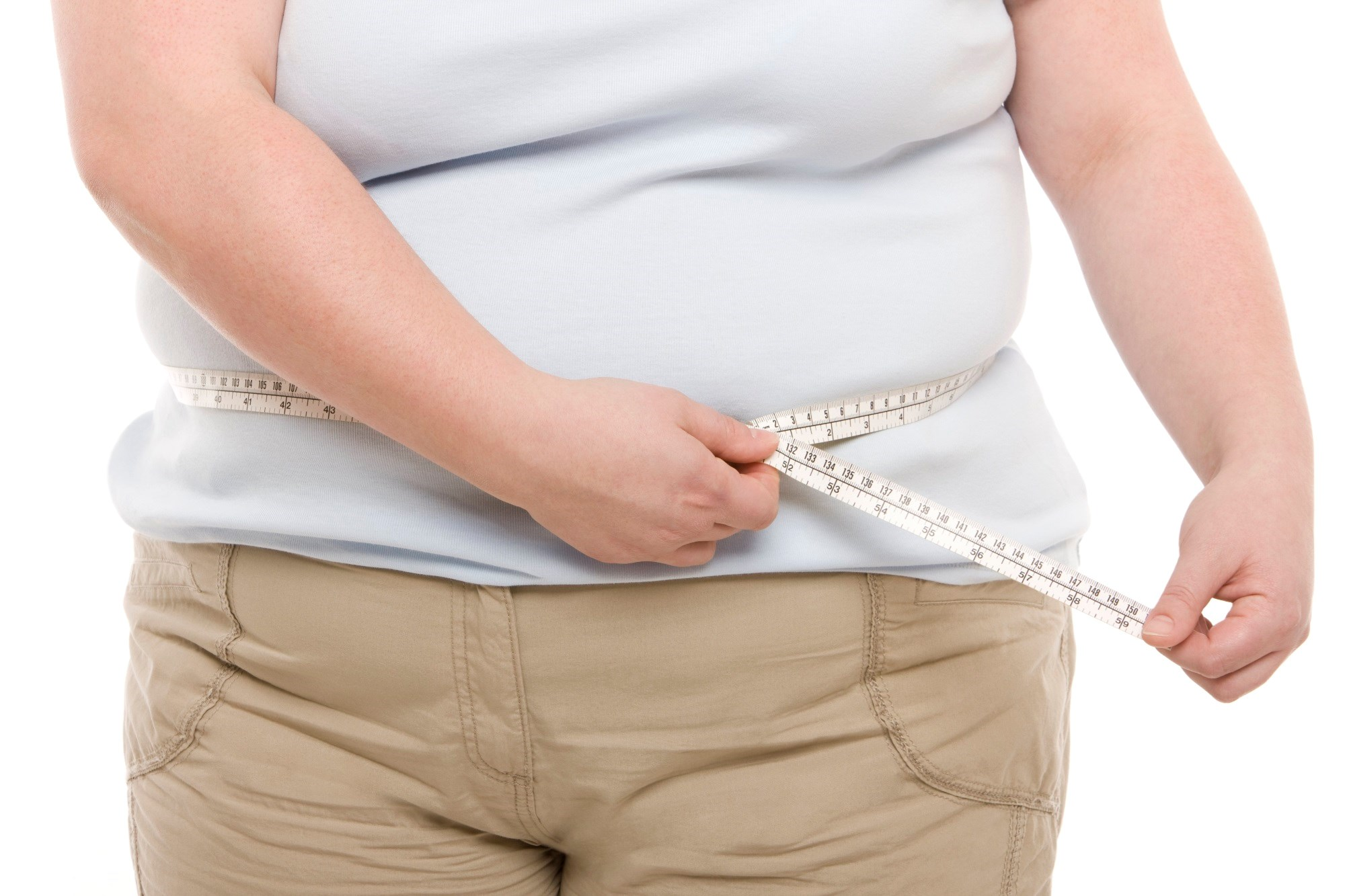 Attitudes Among Obese Are Not Aligned With Healthy Living