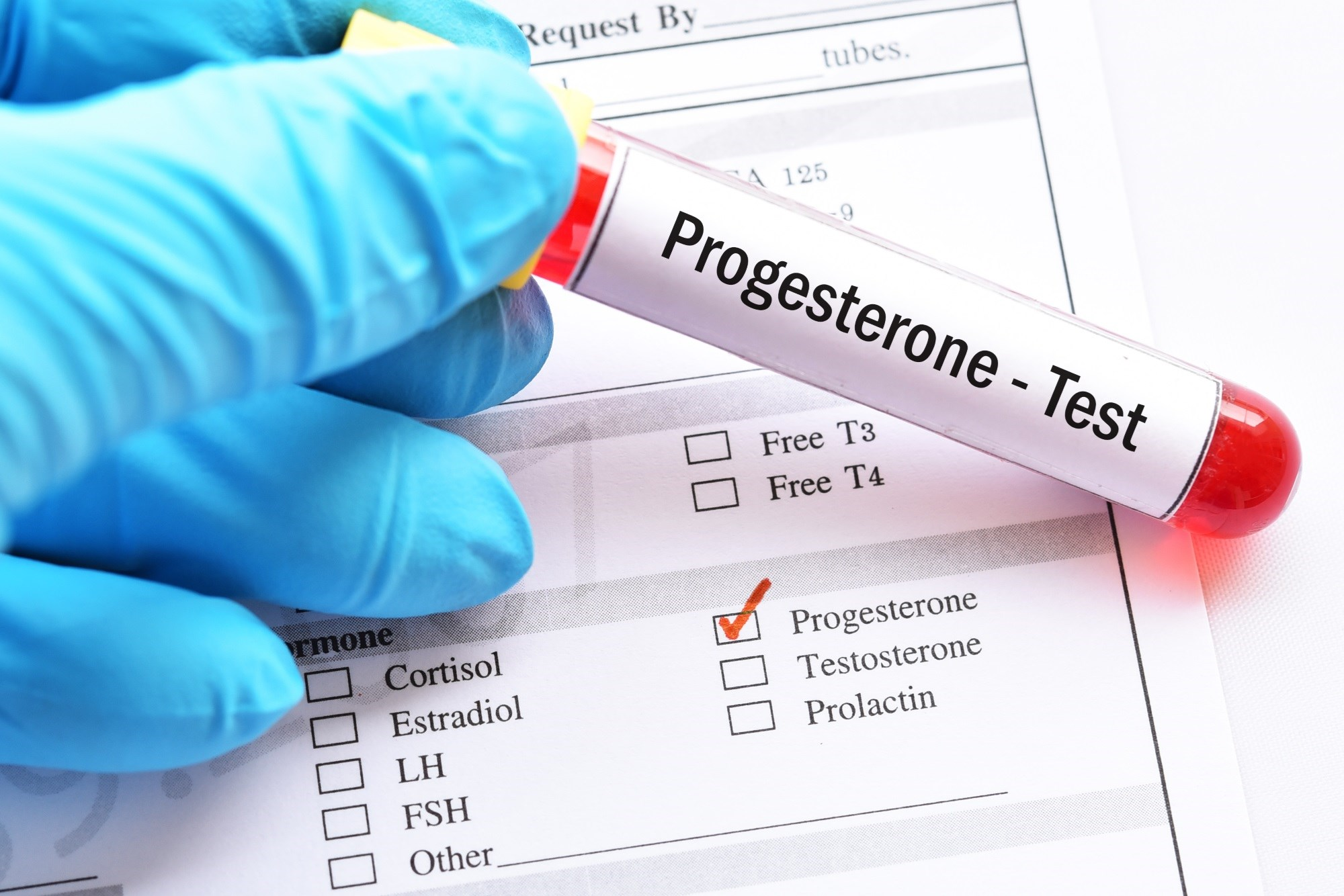 A low midluteal progesterone level ≤15.8 in patients taking clomiphene citrate was associated with low probability of live birth.