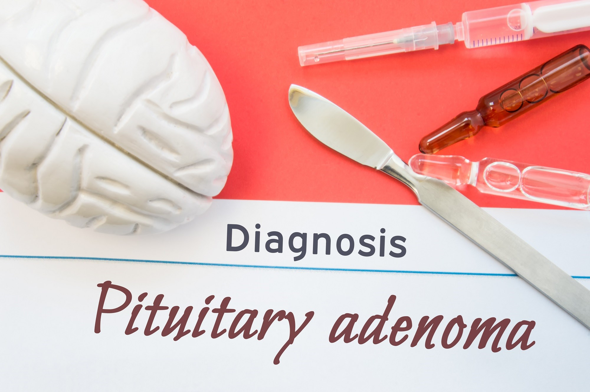 Conservative Monitoring Strategy for Non-Functioning Pituitary Adenomas Evaluated