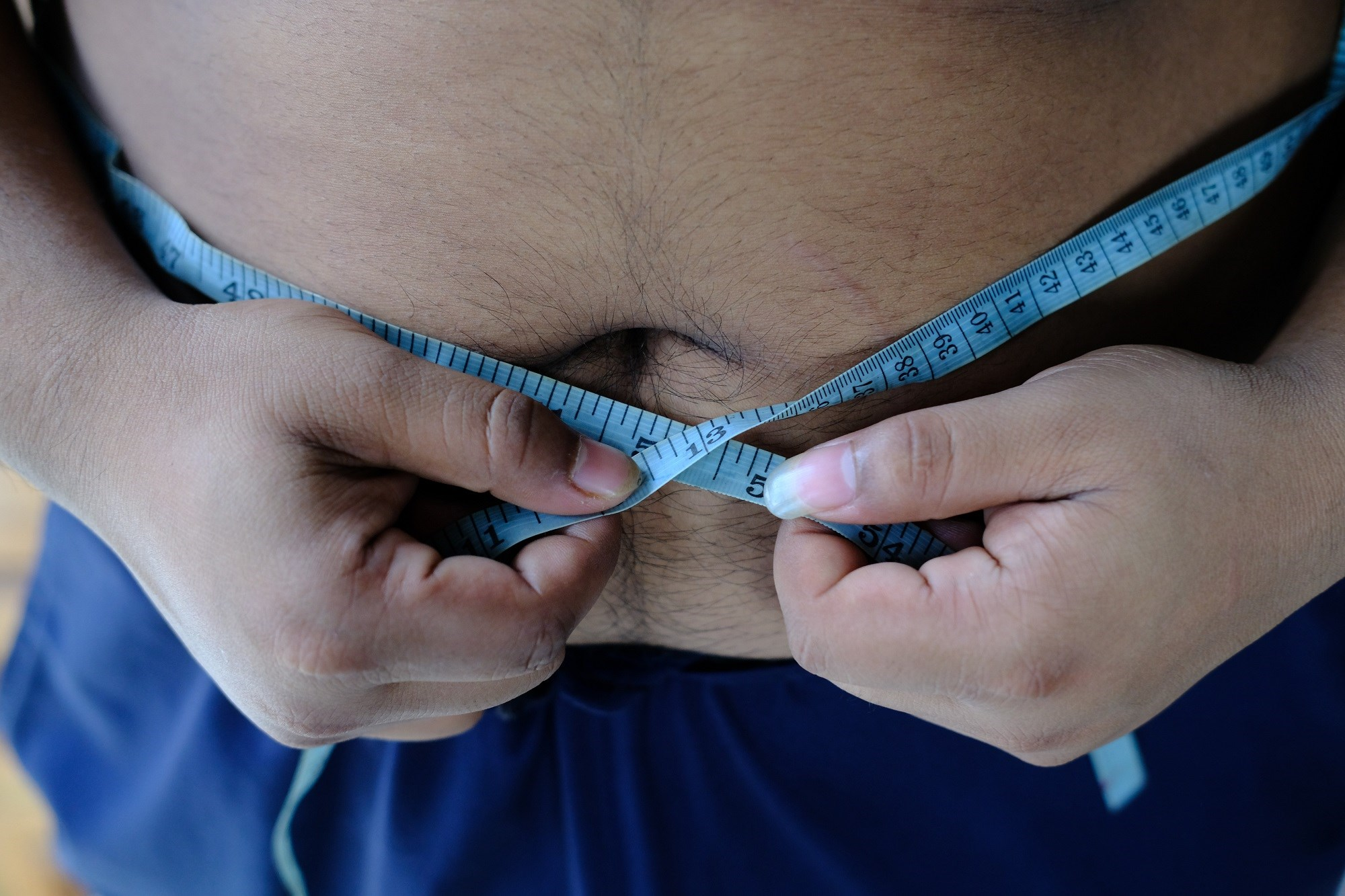 Lorcaserin Facilitates Weight Loss in Overweight, Obese