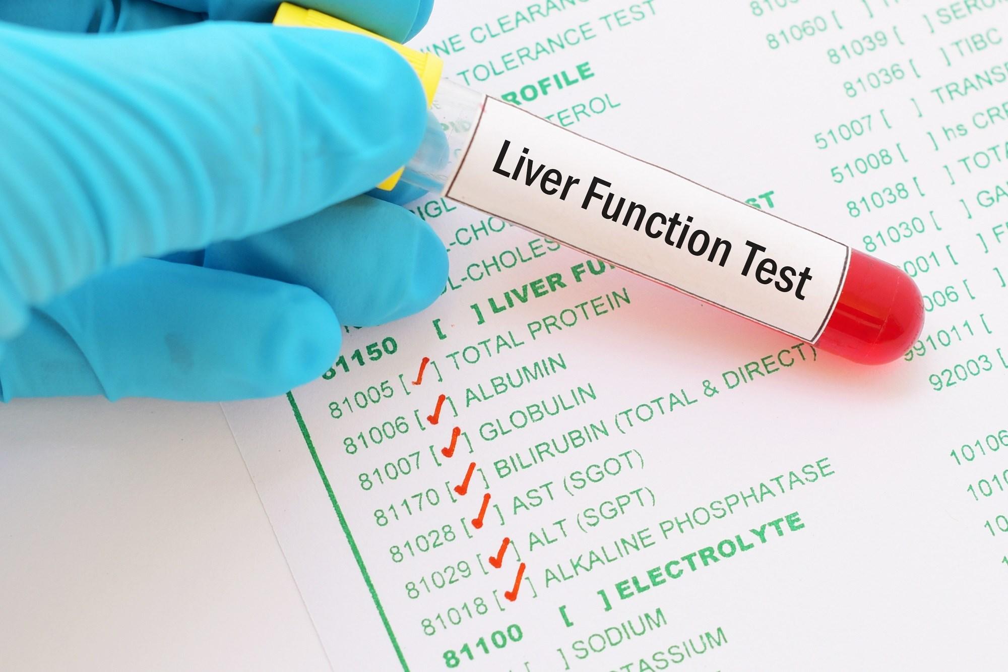 Hepatic Markers Linked to Early Predictors of Type 2 Diabetes Risk in Women