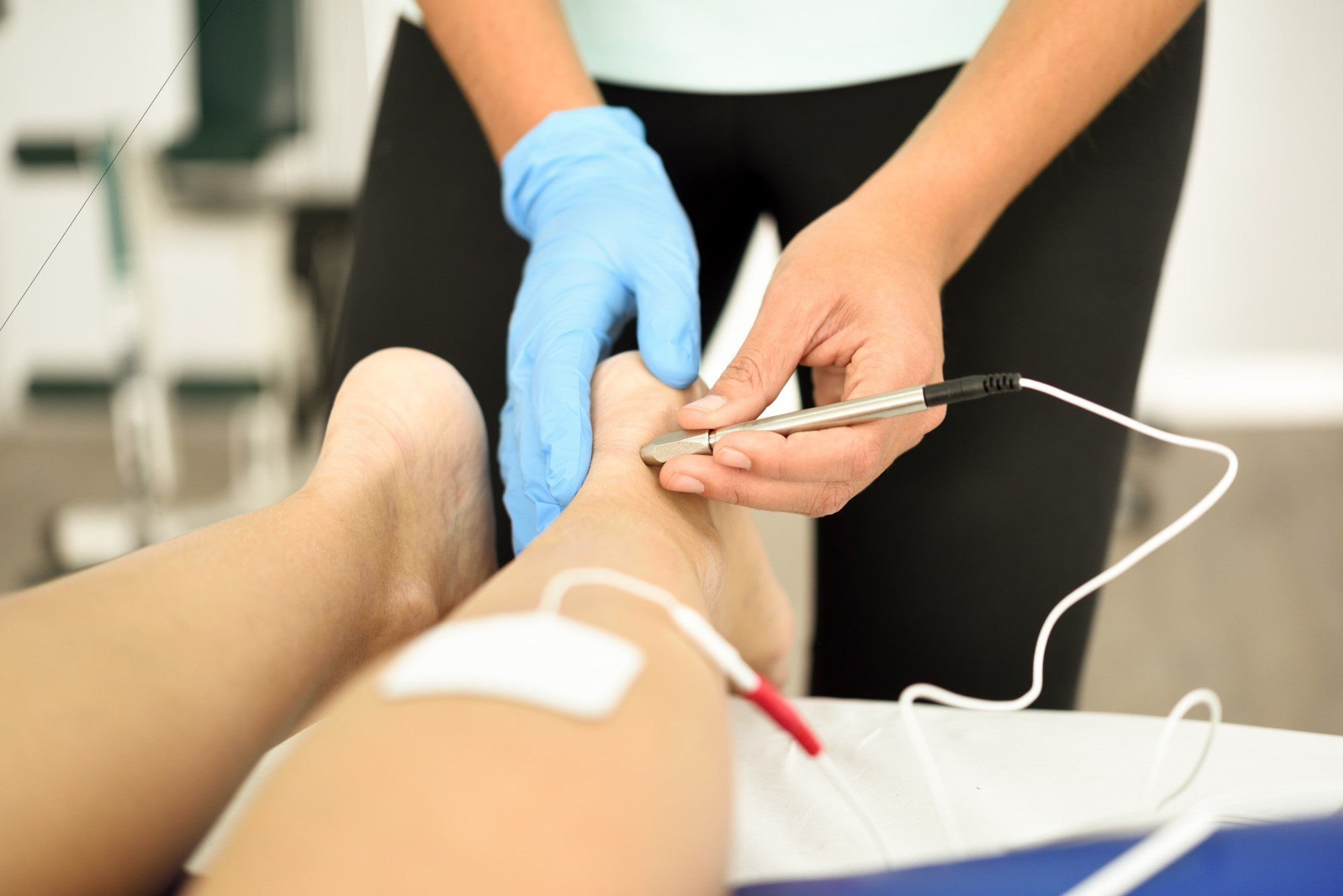 Treating Painful Diabetic Peripheral Neuropathy With Electroacupuncture
