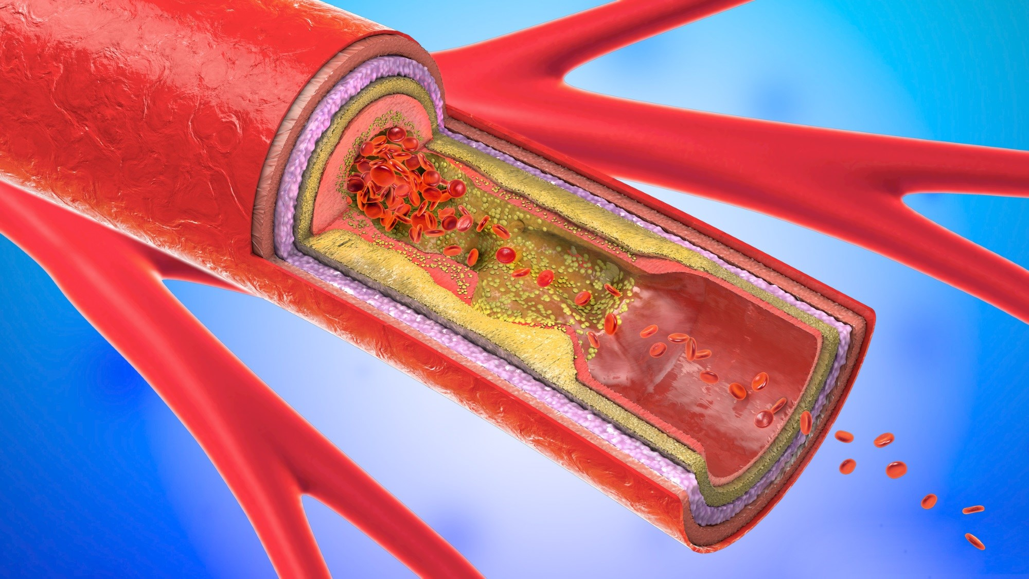 Obesity was associated with an increased carotid necrotic core volume and calcification in patients with and without type 2 diabetes.