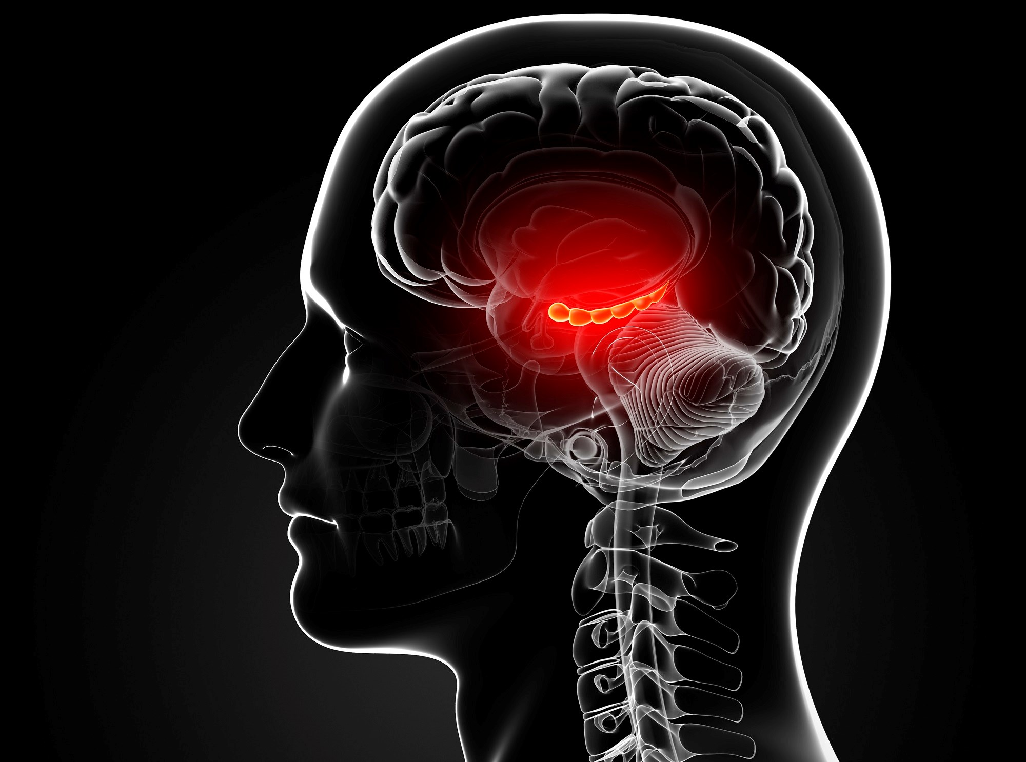 Diabetes and smoking are vascular risk factors associated with hippocampal calcification in older patients with memory issues.