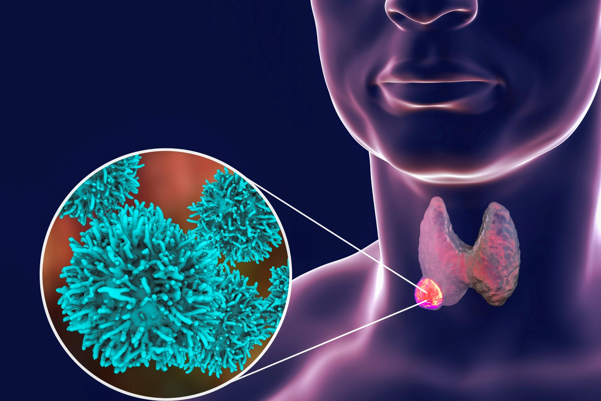 A higher proportion of participants chose total thyroidectomy when 'papillary thyroid cancer' was used to describe the condition versus 'papillary lesion' or 'abnormal cells.'