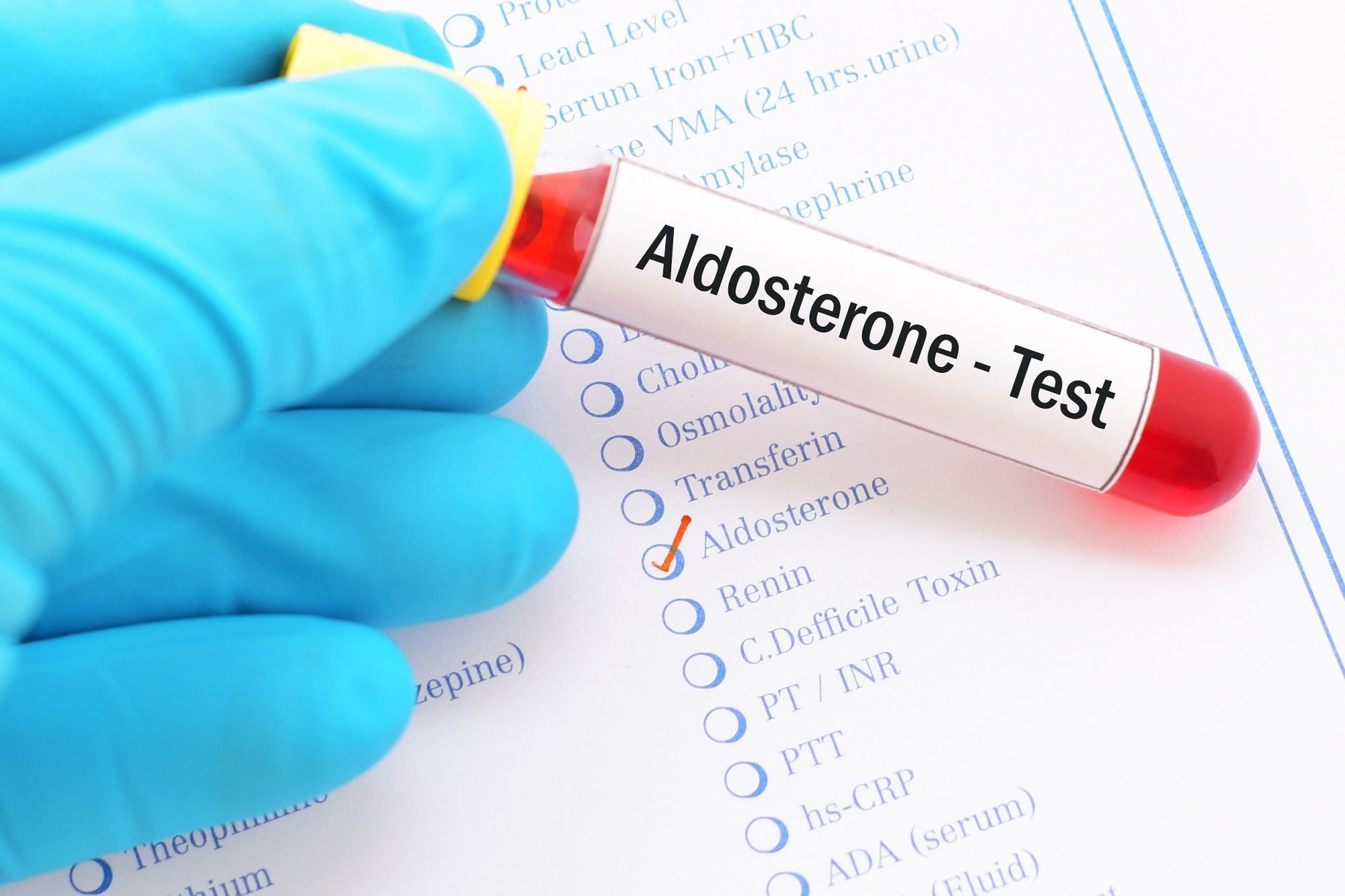 Higher levels of aldosterone are associated with insulin resistance and incident type 2 diabetes among multiethnic individuals.